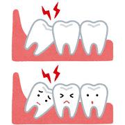 臭い 対策 奥歯 奥歯が臭いときに考えられる8つの原因と、それぞれの対処法。